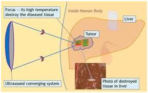 cancer renal hifu