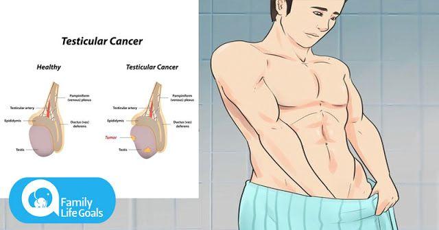 cancer testicular netratat