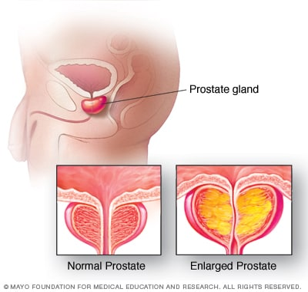 Prostatitis detralex prostate cancer diet study
