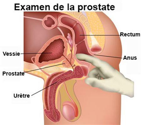 Cancerul de uretra, o boala mai rara si greu de descoperit: Simptome si tratament
