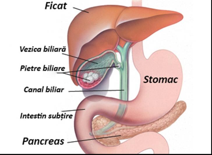 Tratamentul cancerului de vezica biliara din Israel