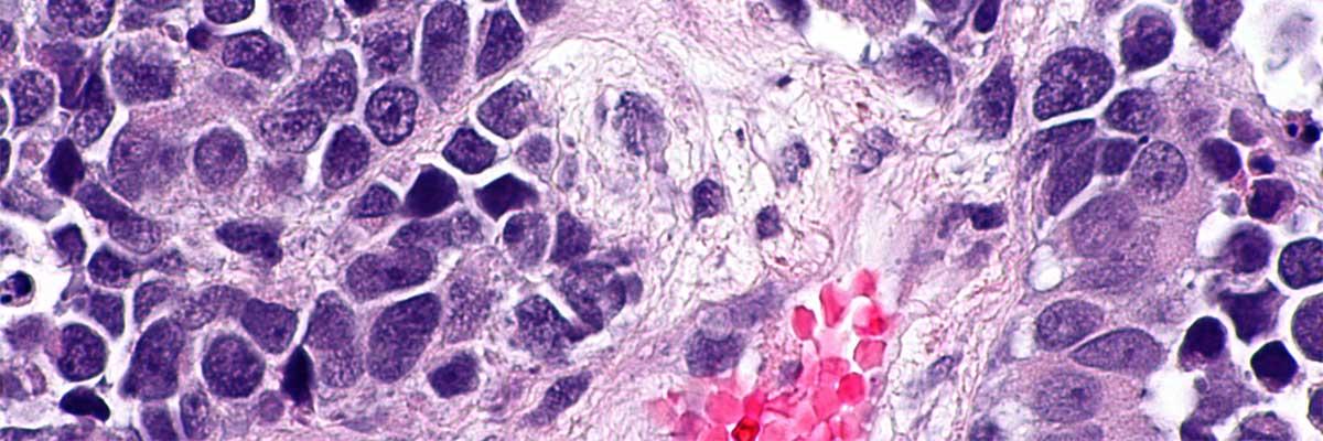cancer vezica urinara manifestari cancerul feminin