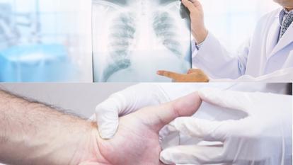 cancerul de plamani se poate vindeca