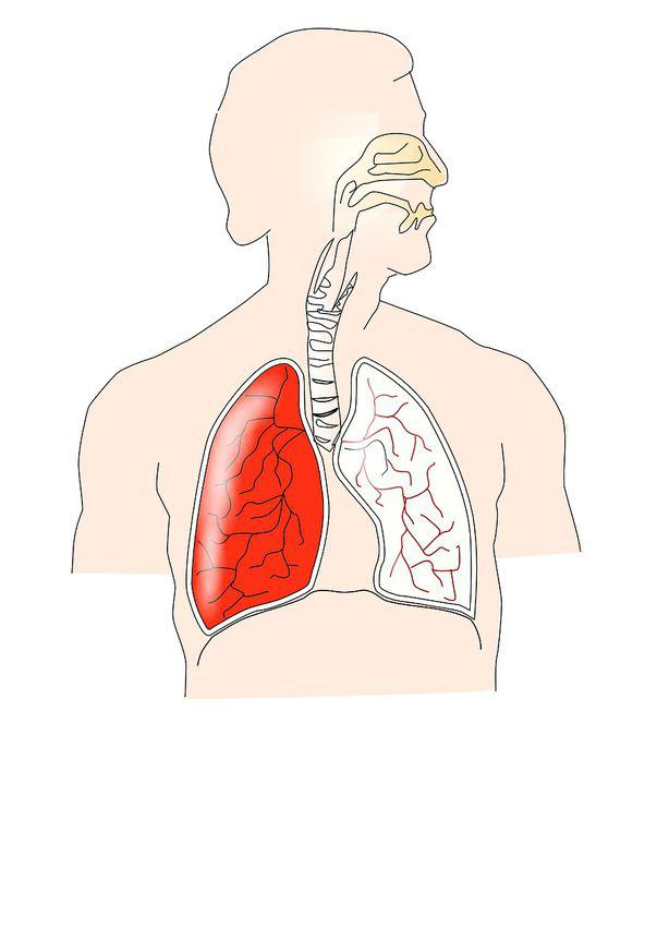 inverted papilloma in nose cancerul dragostea mea mioara grigore