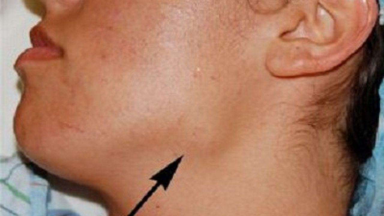 cara menghilangkan papilloma di leher the papillary urothelial carcinoma