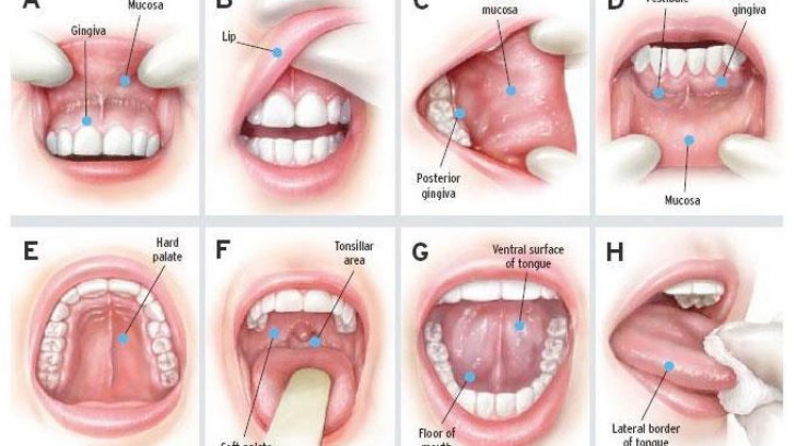 cancerul mucoasei bucale