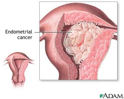 cancerul mucoasei uterine sinus papilloma symptoms