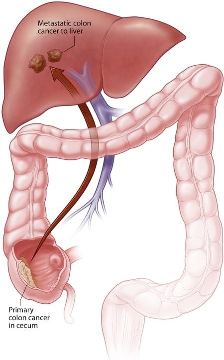 cancerul rectal oxiuros homeopatia