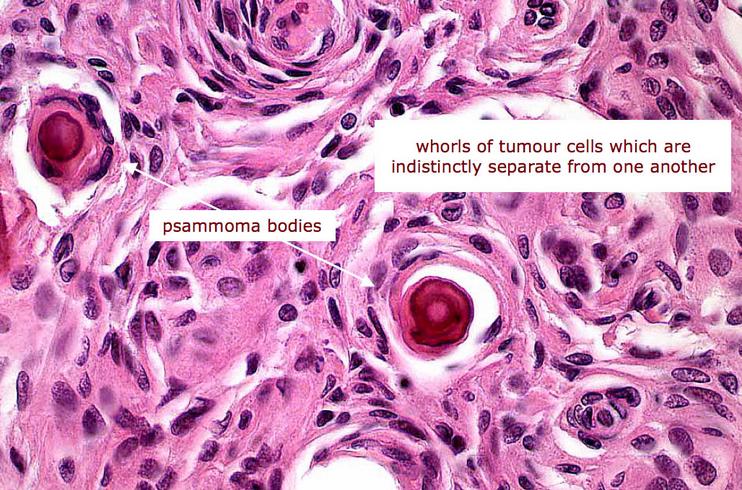 cancerul tiroidian tablou clinic hpv impfung jungen sport danach
