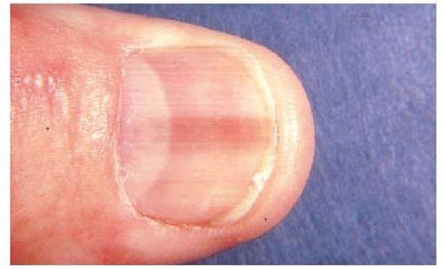 cancerul unghiilor
