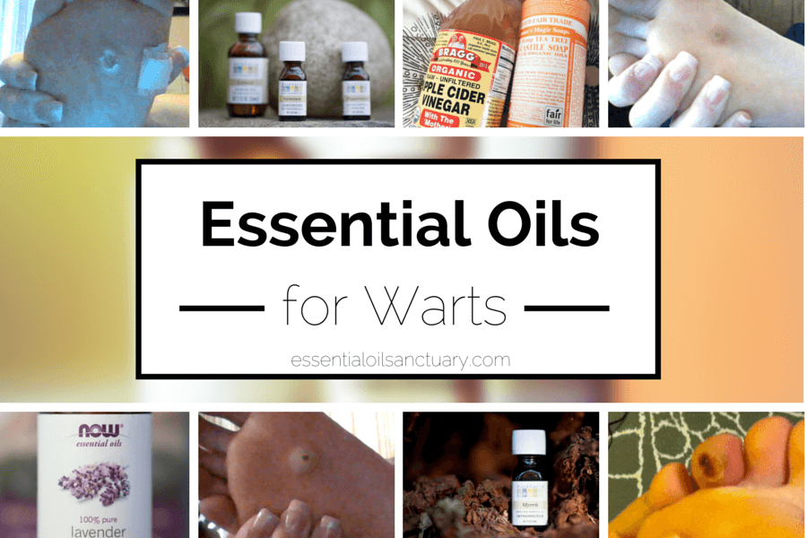 hpv warts coconut oil oxiuros tratamiento casero