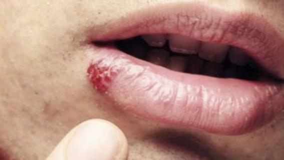 papilloma virus sulla lingua sintomi parazitii colaj 2019