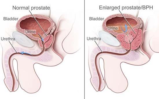 cancerul malign de prostata pengertian papiloma adalah