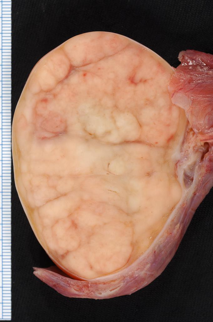 cancer colorectal viande rouge