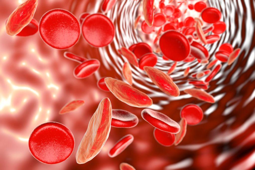 Anemie - semne și simptome