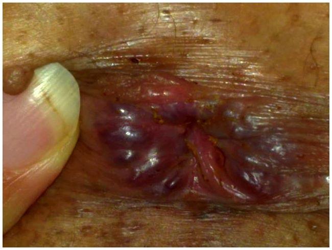 Hemoroizii şi cancerul