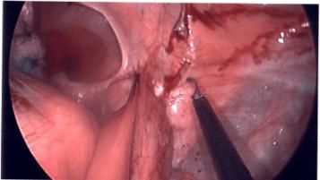 cancer rectal stump cancer benign tissue