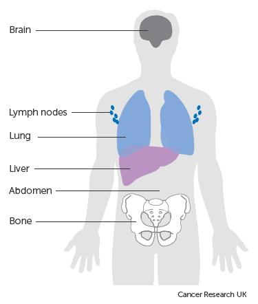 lung cancer abdominal bloating tratament flatulenta si balonare