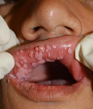 papilloma virus boca