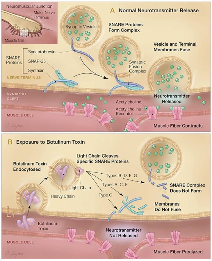 clostridium botulinum toxine
