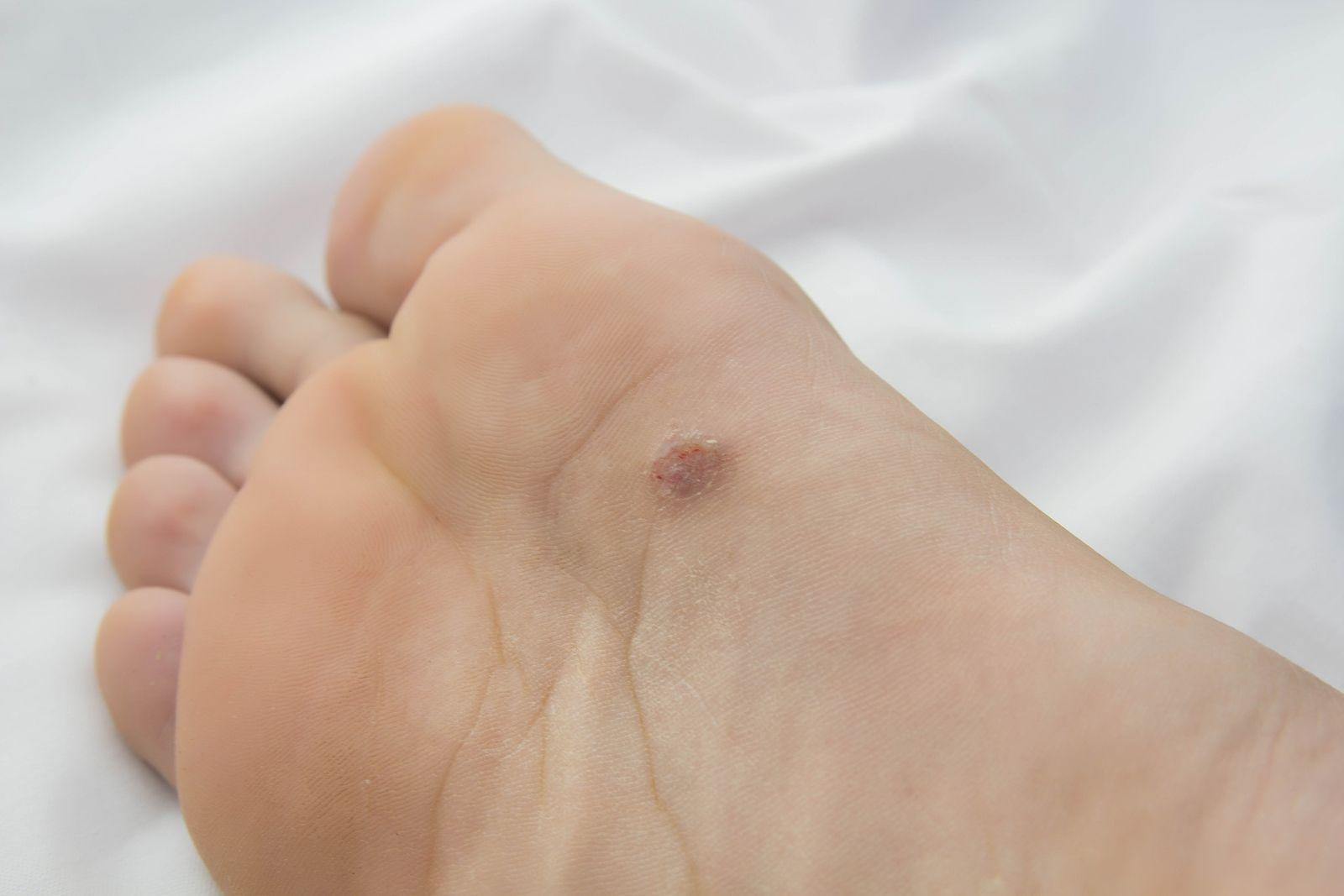 Tratamiento de hongos de pie con ácido acético