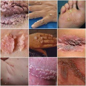 condyloma acuminata bisa disembuhkan simptome la detoxifiere