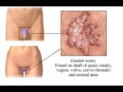condyloma acuminata genital warts