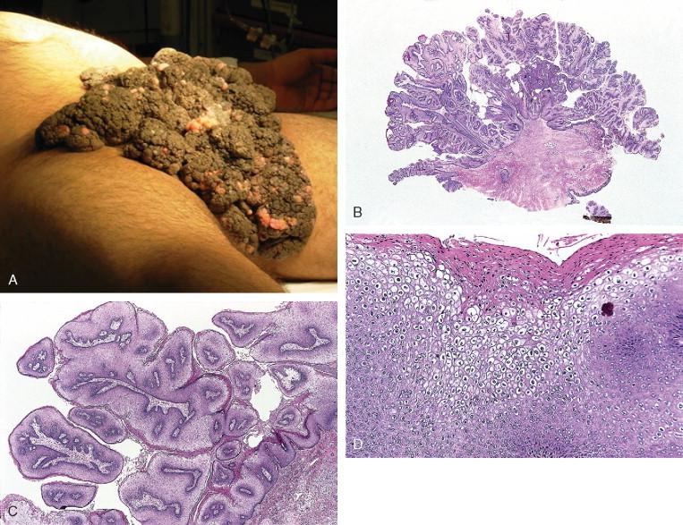condyloma acuminata hiv