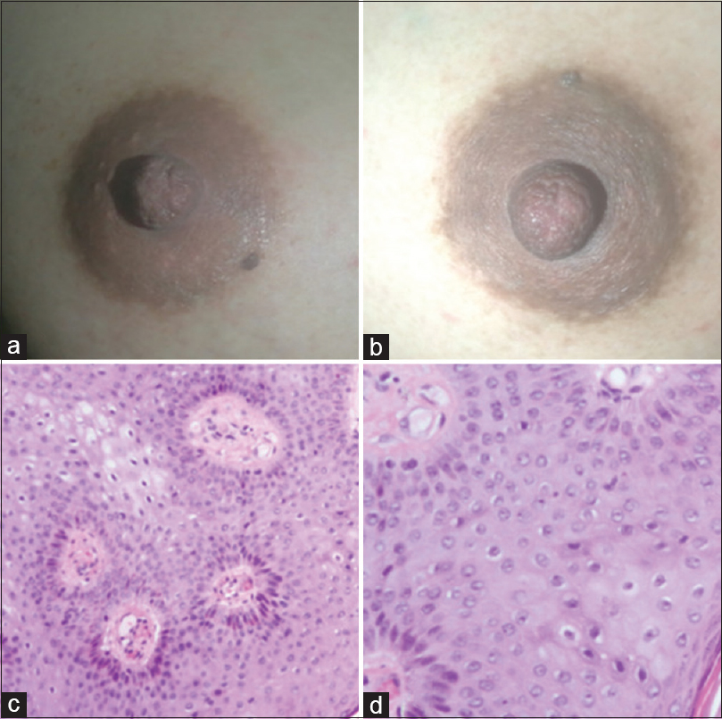 tratament pentru raceala cancer pancreas jobs