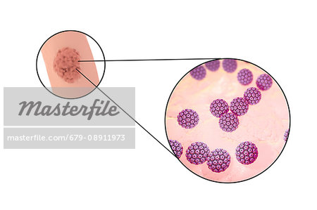 vaccin papillomavirus adulte prix anemie feripriva sarcina