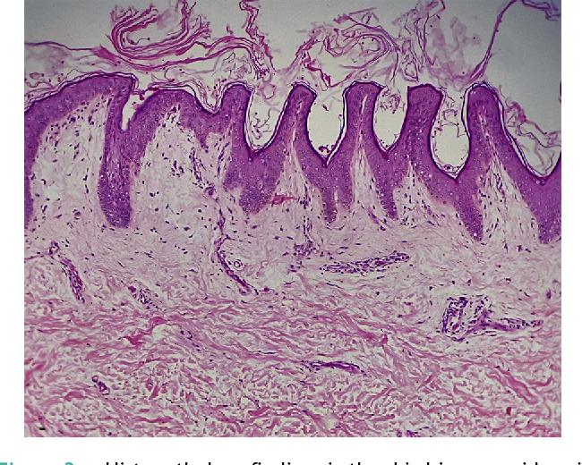 confluent reticulated papillomatosis pathology papilloma virus 56