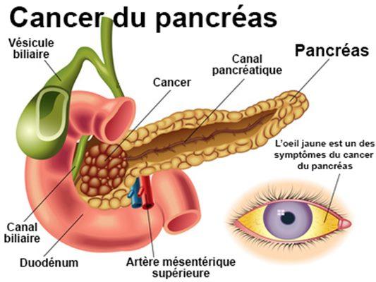 Cancer Pancreas Tratament Naturist