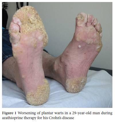 human papillomavirus infection plantar warts