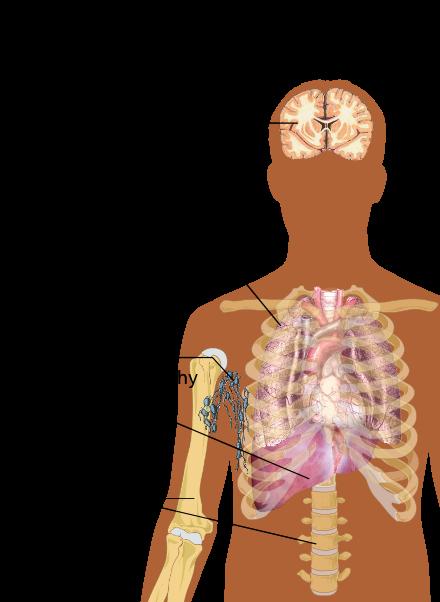 A DOUA VIAŢĂ. Dan Nicolau, singurul chirurg român care operează metastaze pulmonare