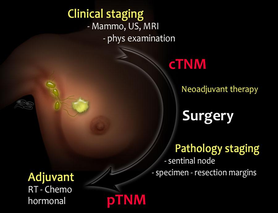 Cancerul mamar: ce reprezinta ER pozitiv sau ER negativ