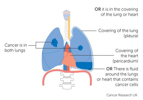 metastatic cancer marathi hpv vaccine does it work