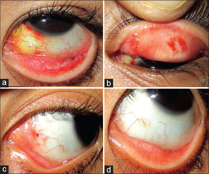 treatment for recurrent conjunctival papilloma pancreatic cancer types