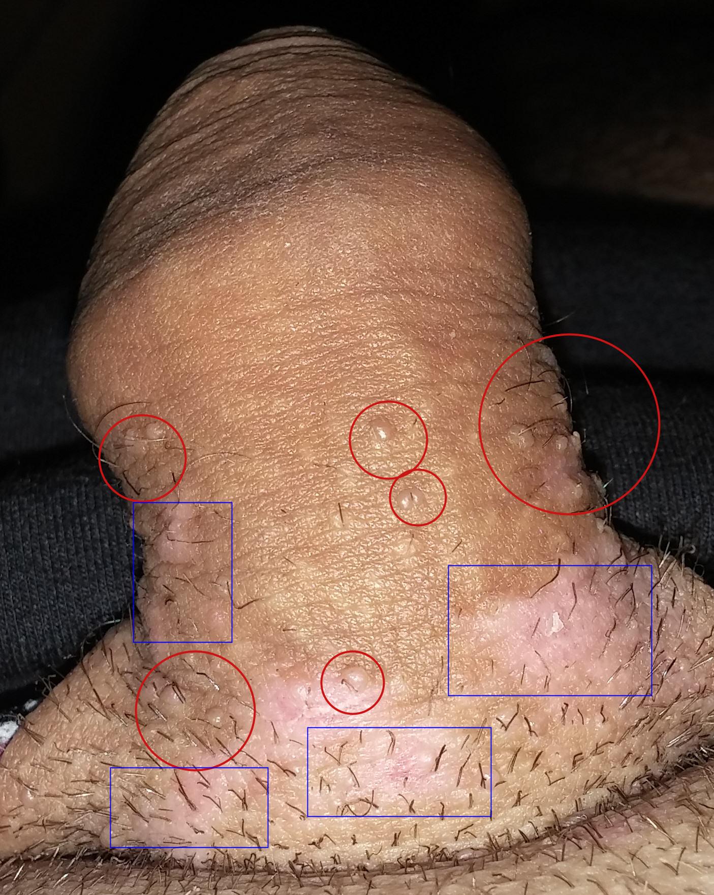 signe papillomavirus chez lhomme se trateaza cancerul de colon