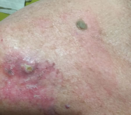 Tratament & Opțiuni Cancer de piele
