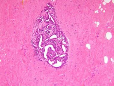 ductal papilloma patient uk
