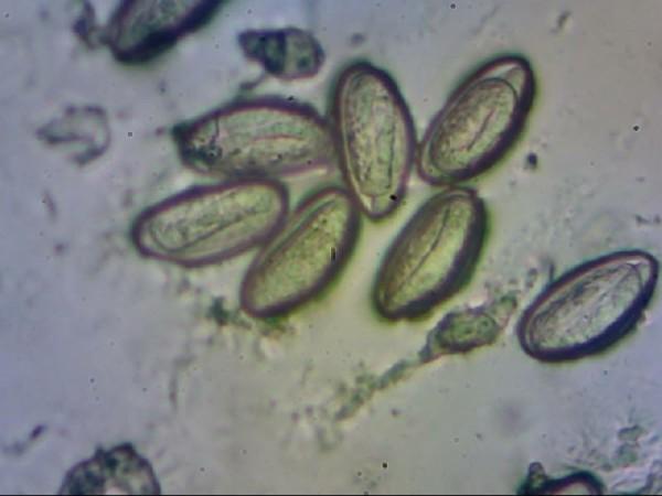 enterobius vermicularis sintomi tipos de virus del papiloma humano que causan cancer