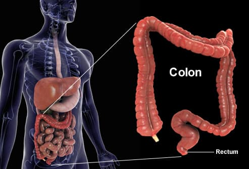 Cancer de colon - Wikipedia