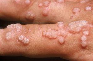 virus del papiloma humano en el ano schistosomiasis o esquistosomiasis