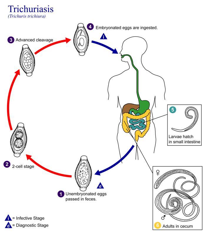 enterobius vermicularis alternative treatment oxiuros bebe