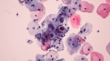 definition of human papilloma virus confluent reticulated papillomatosis pathology