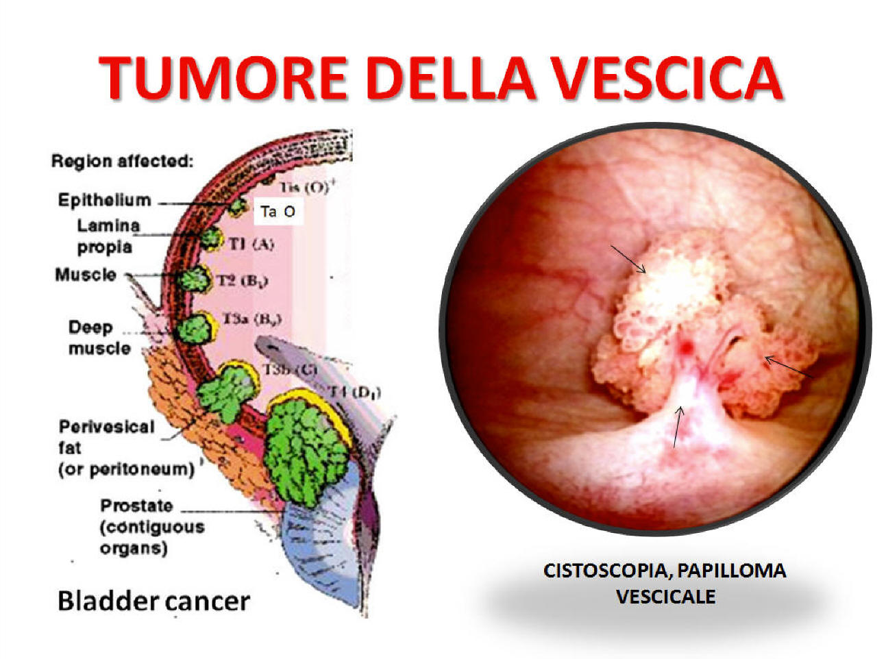 papilloma virus vescica hpv analizi nedir
