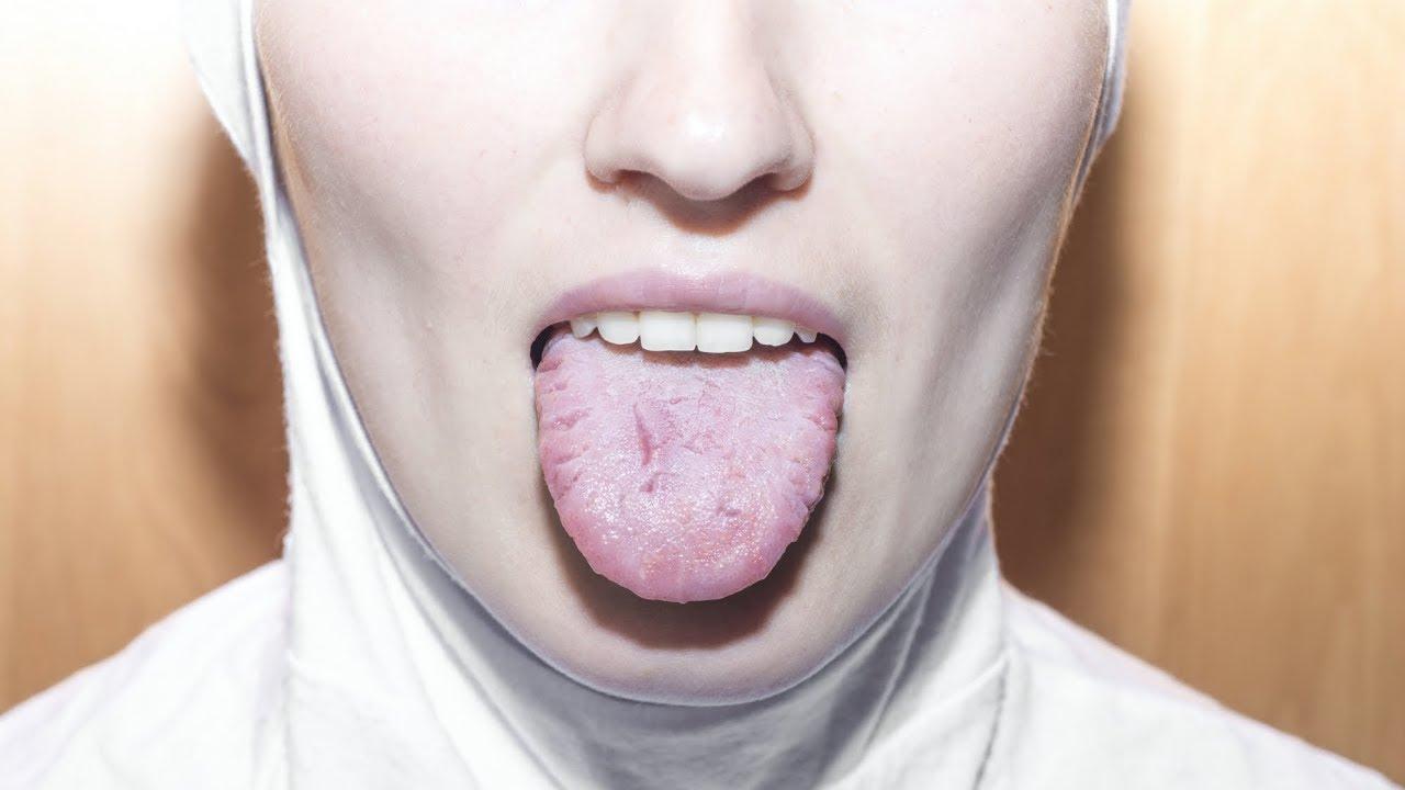 În doar 2 minute poți afla dacă suferi de cancer bucal - Dr. Leahu Dental Clinics