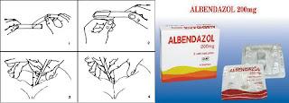 enterobius vermicularis treatment pregnancy gastric cancer journal springer