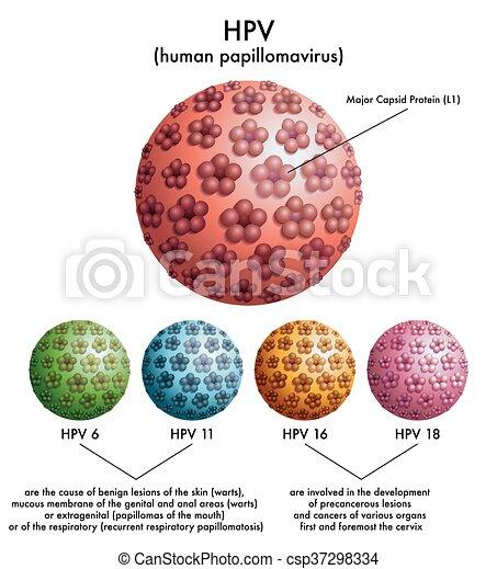 tumore da papilloma virus cancer colorectal barium enema