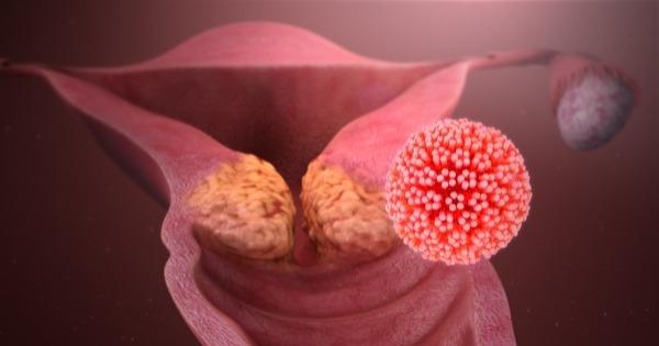 todo cancer de utero e causado pelo hpv